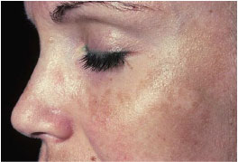 Melasma of chloasma